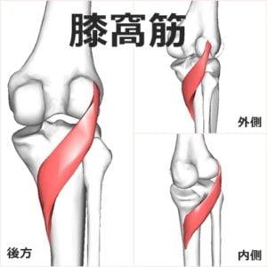 膝裏の痛み